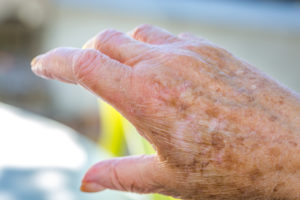 Dealing with Skin Irritation at the End of Life